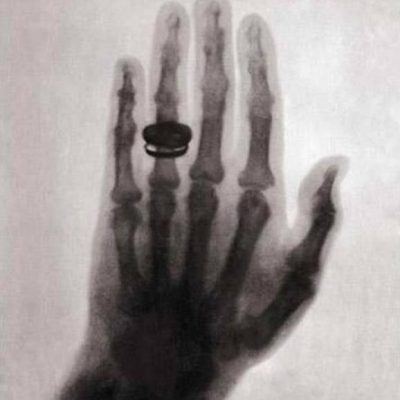 28th December 1895: Wilhelm Röntgen publishes his discovery of X-rays