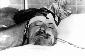 Leon Trotsky in hospital after ice axe attack